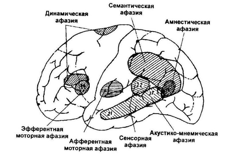 афазия классификация локализация